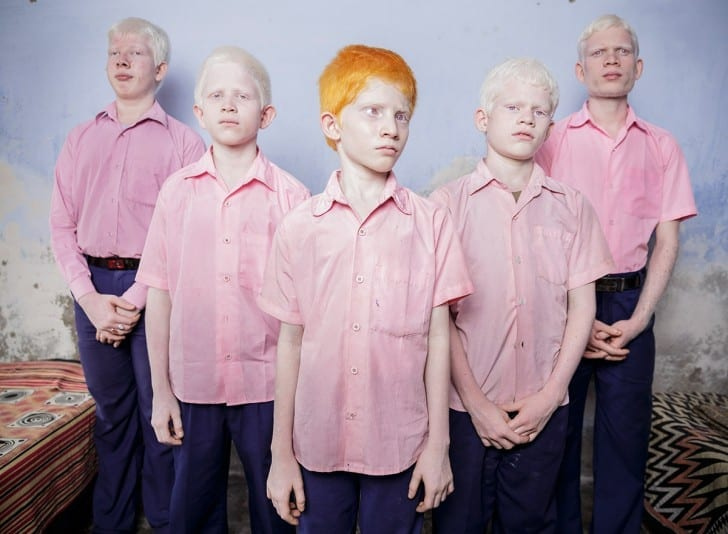 Blind albino boys in their boarding room at a mission school for the blind in West Bengal, India